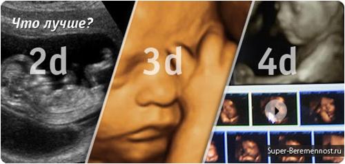 Узи при беременности в 3d